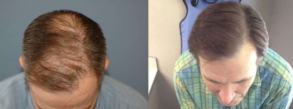 Hair transplant 1